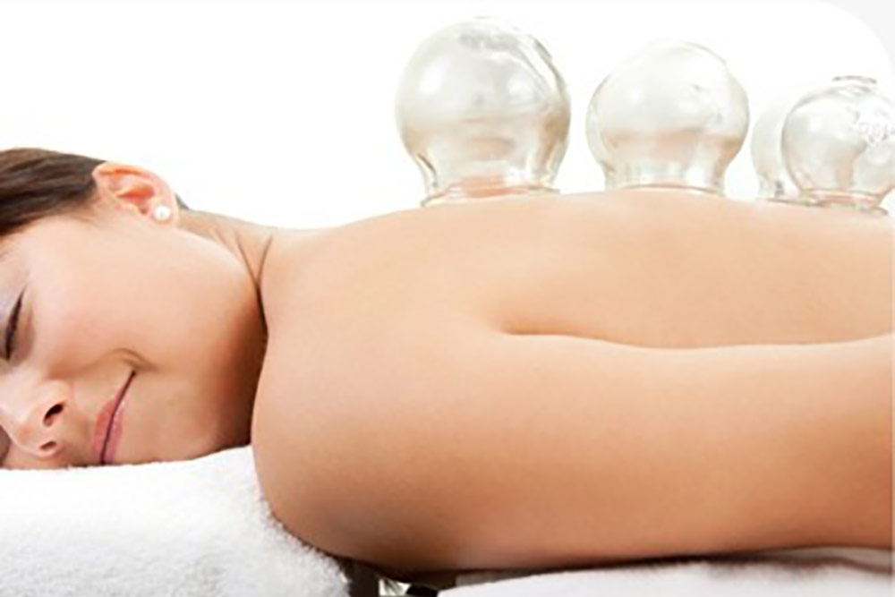 Cupping-Therapy-Services-In-Los-Angeles